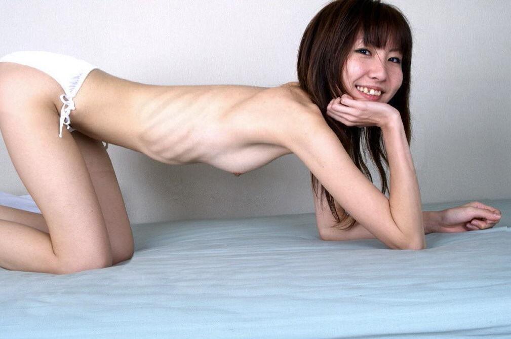 【※混乱注意※】拒食症と過食症の女の子の裸を交互に貼っておまえらを混乱に陥れる愉快犯スレwwwwwwwwww(画像あり)・9枚目