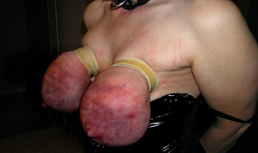 【※壊死注意】女性が乳房を切除する理由、一位の癌に続いて第二位がコチラ。。。(画像あり)・14枚目