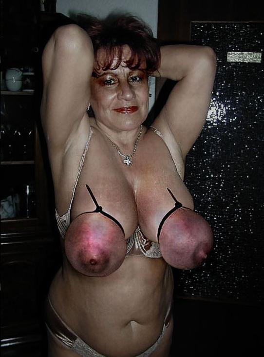 【※壊死注意】女性が乳房を切除する理由、一位の癌に続いて第二位がコチラ。。。(画像あり)・15枚目