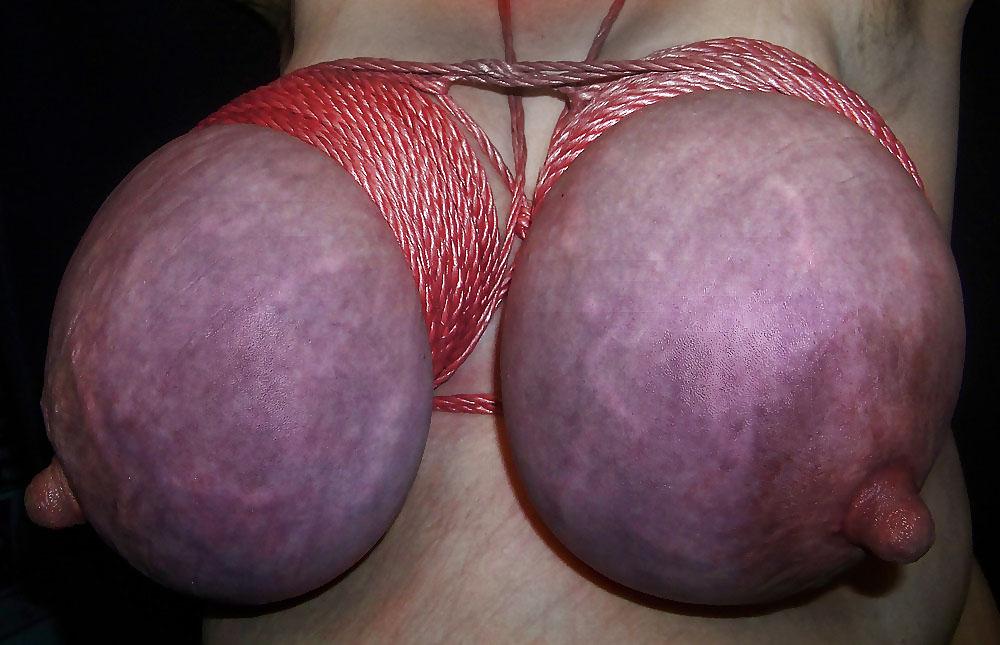 【※壊死注意】女性が乳房を切除する理由、一位の癌に続いて第二位がコチラ。。。(画像あり)・16枚目