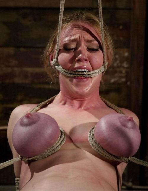 【※壊死注意】女性が乳房を切除する理由、一位の癌に続いて第二位がコチラ。。。(画像あり)・23枚目