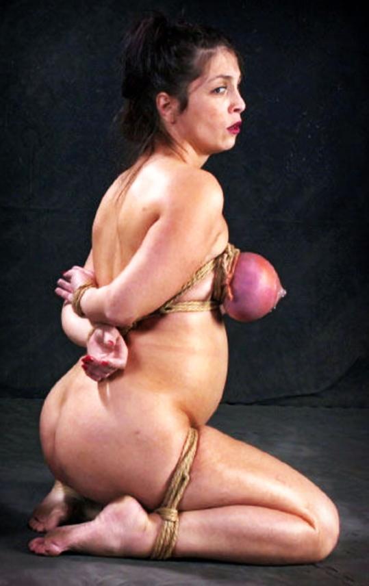 【※壊死注意】女性が乳房を切除する理由、一位の癌に続いて第二位がコチラ。。。(画像あり)・25枚目