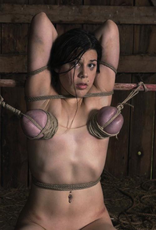 【※壊死注意】女性が乳房を切除する理由、一位の癌に続いて第二位がコチラ。。。(画像あり)・26枚目
