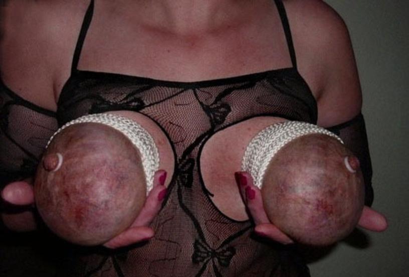 【※壊死注意】女性が乳房を切除する理由、一位の癌に続いて第二位がコチラ。。。(画像あり)・3枚目