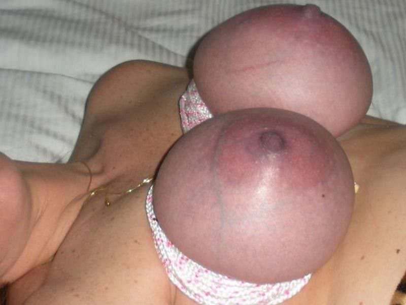 【※壊死注意】女性が乳房を切除する理由、一位の癌に続いて第二位がコチラ。。。(画像あり)・9枚目