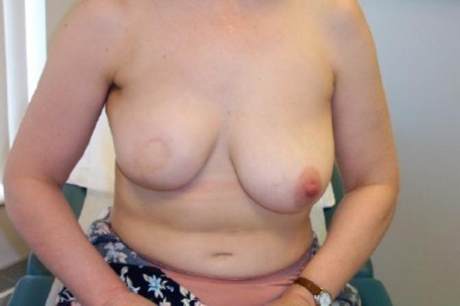 【※閲覧注意】乳ガン患者エロ画像をご覧下さい。。。(画像26枚)・1枚目