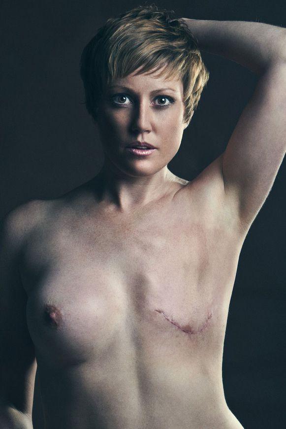 【※閲覧注意】乳ガン患者エロ画像をご覧下さい。。。(画像26枚)・10枚目