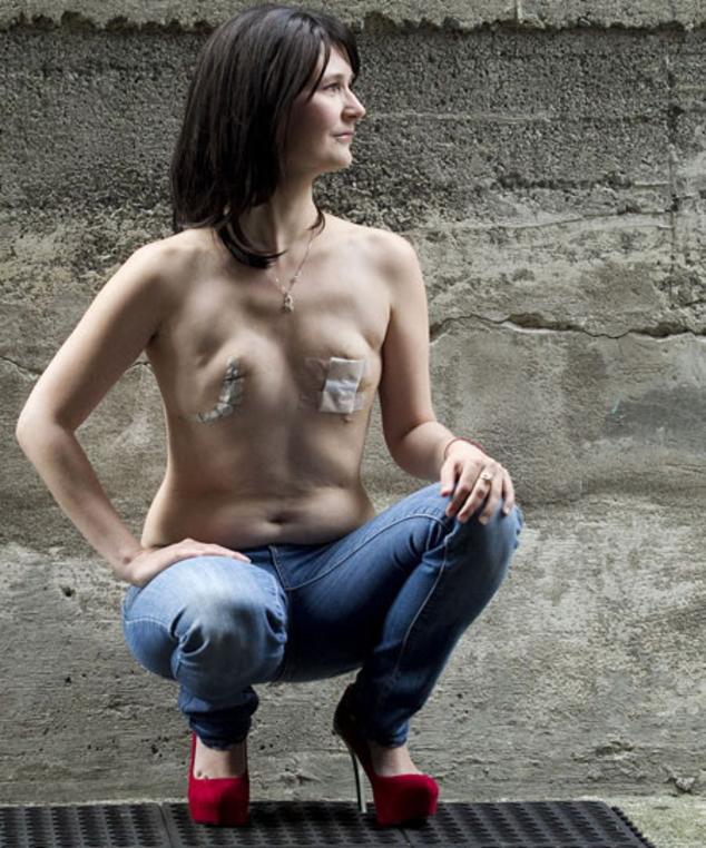 【※閲覧注意】乳ガン患者エロ画像をご覧下さい。。。(画像26枚)・12枚目