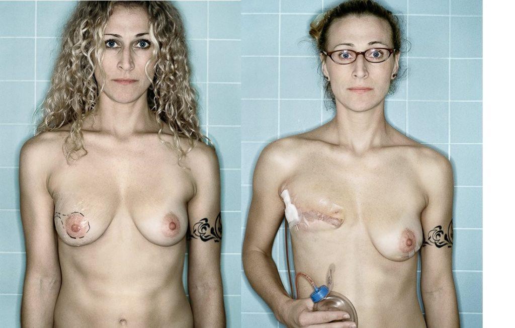 【※閲覧注意】乳ガン患者エロ画像をご覧下さい。。。(画像26枚)・14枚目