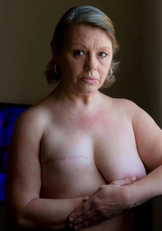 【※閲覧注意】乳ガン患者エロ画像をご覧下さい。。。(画像26枚)・15枚目