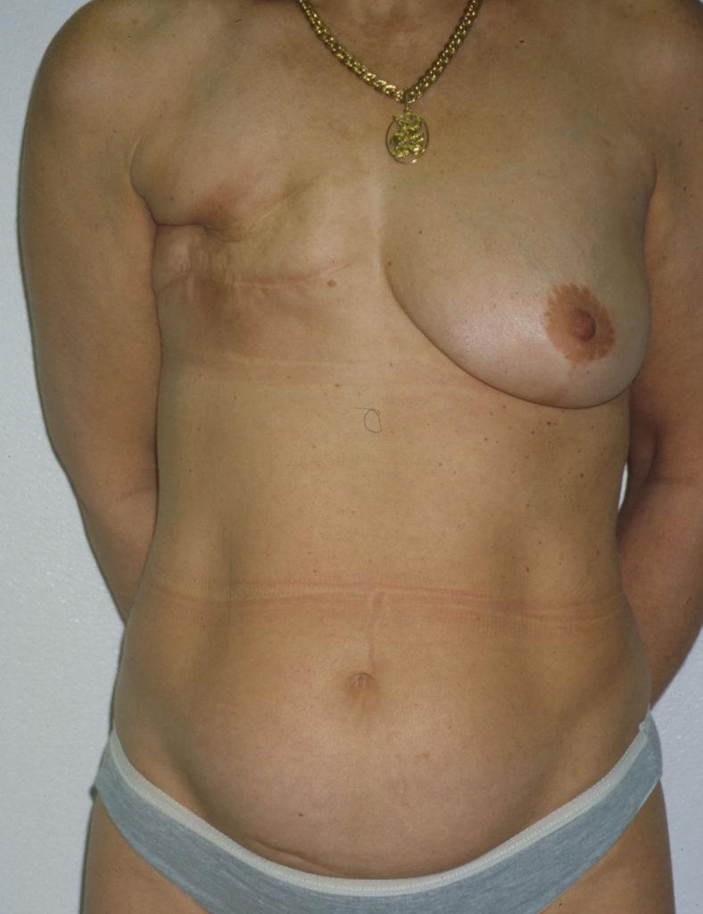 乳ガン患者のおっぱいをじっくり見てみる不謹慎すぎるエロ画像まとめ。(52枚)・42枚目