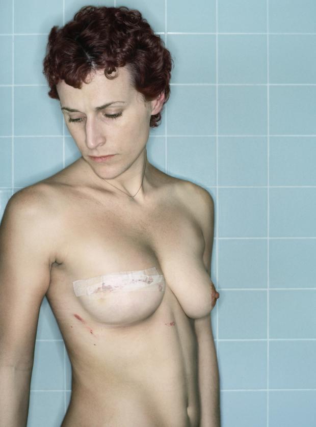 【※閲覧注意】乳ガン患者エロ画像をご覧下さい。。。(画像26枚)・18枚目