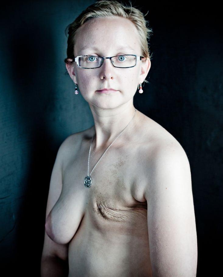 乳ガン患者のおっぱいをじっくり見てみる不謹慎すぎるエロ画像まとめ。(52枚)・46枚目