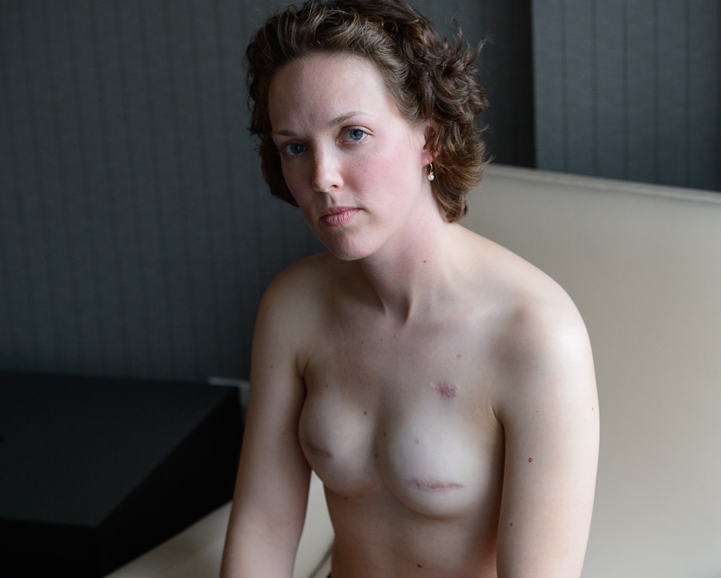 乳ガン患者のおっぱいをじっくり見てみる不謹慎すぎるエロ画像まとめ。(52枚)・52枚目