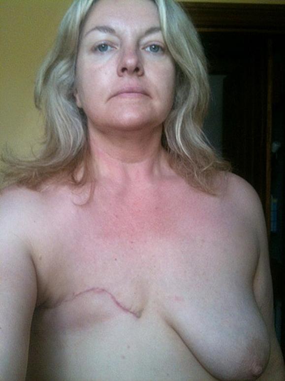 【※閲覧注意】乳ガン患者エロ画像をご覧下さい。。。(画像26枚)・3枚目