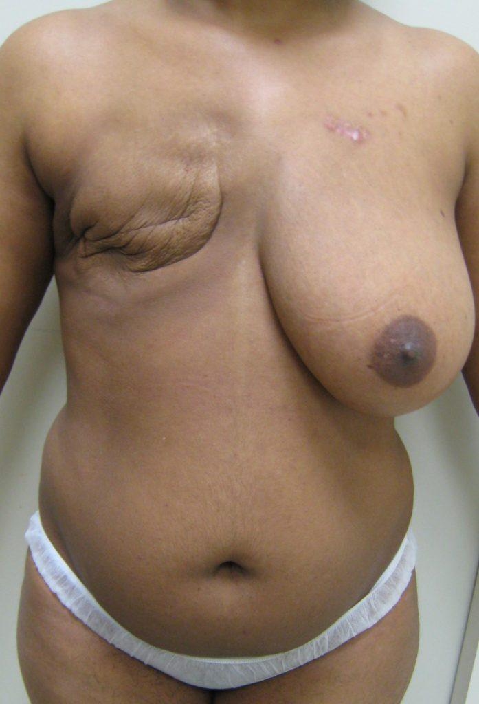 【※閲覧注意】乳ガン患者エロ画像をご覧下さい。。。(画像26枚)・4枚目