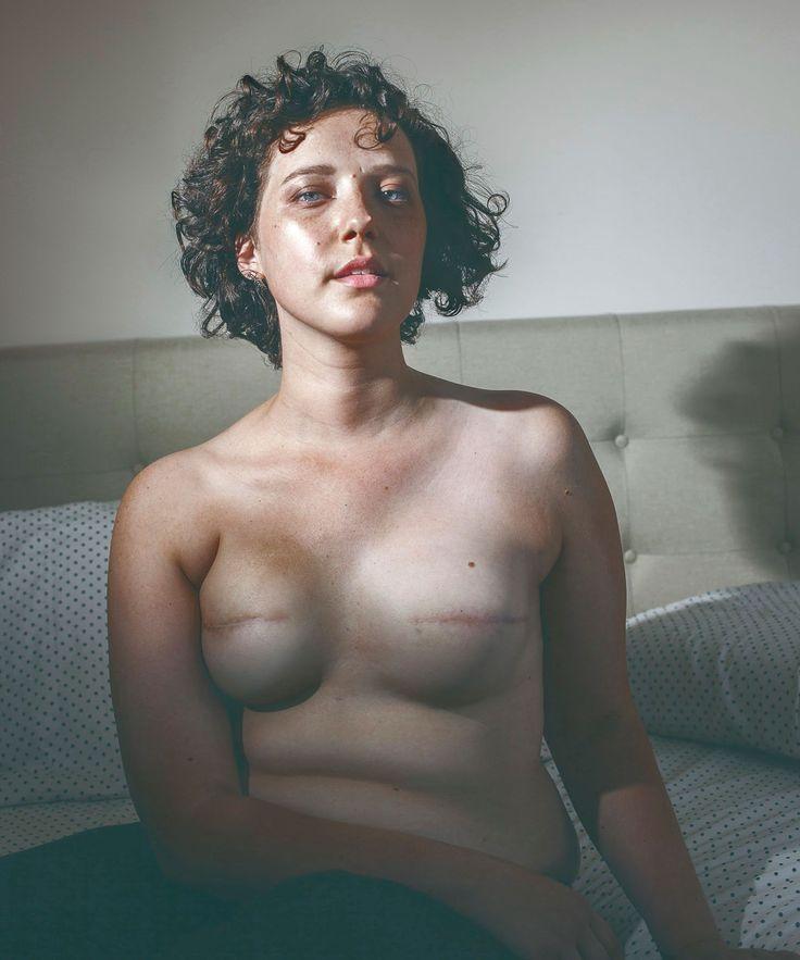 【※閲覧注意】乳ガン患者エロ画像をご覧下さい。。。(画像26枚)・5枚目