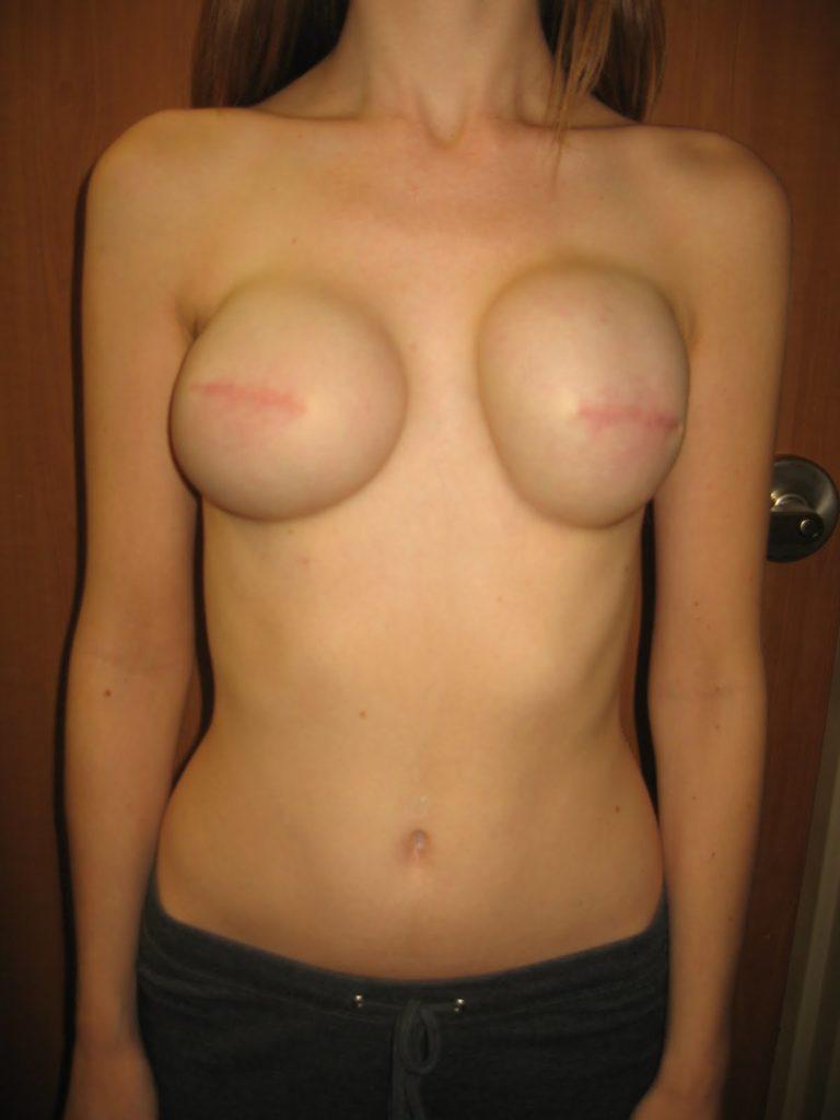 【※閲覧注意】乳ガン患者エロ画像をご覧下さい。。。(画像26枚)・6枚目