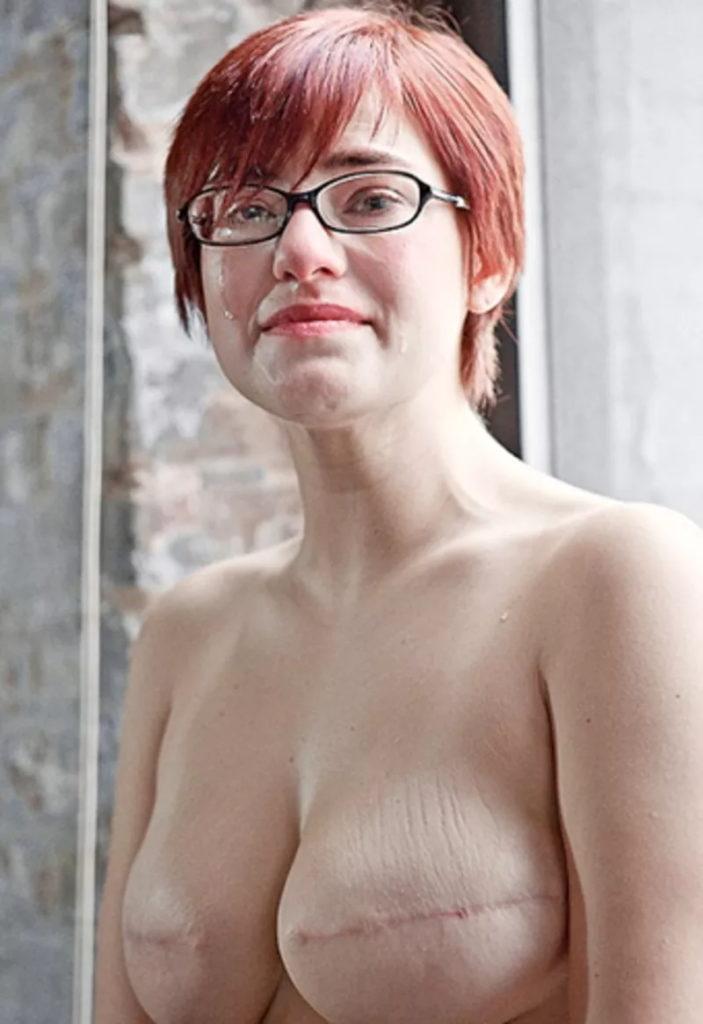 【※閲覧注意】乳ガン患者エロ画像をご覧下さい。。。(画像26枚)・7枚目