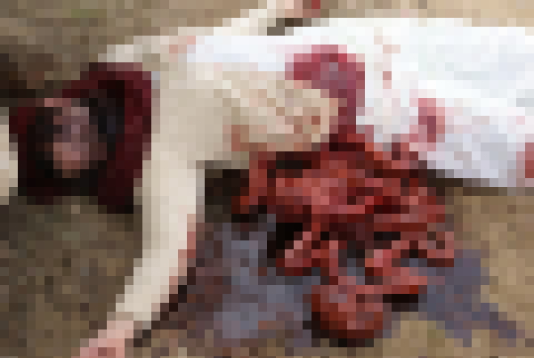 【※超・閲覧注意※】レイプ殺人被害にあったJ〇、、、足が無い。(画像あり)・17枚目