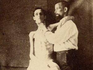 【閲覧注意】「南北戦争」で撮影された捕虜の写真、ISISよりヒドイ・・・(画像)