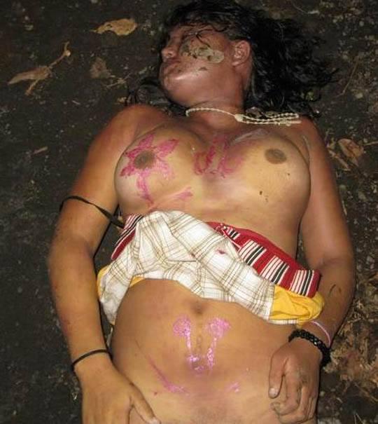 【超閲覧注意】レイプ被害にあった女性の遺体が酷すぎる。・18枚目