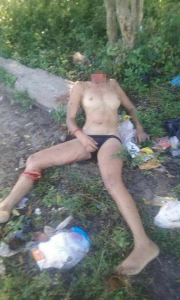 【超閲覧注意】レイプ被害にあった女性の遺体が酷すぎる。・2枚目