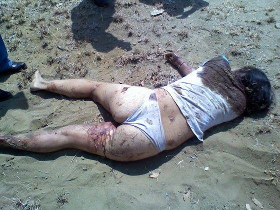 【超閲覧注意】レイプ被害にあった女性の遺体が酷すぎる。・20枚目
