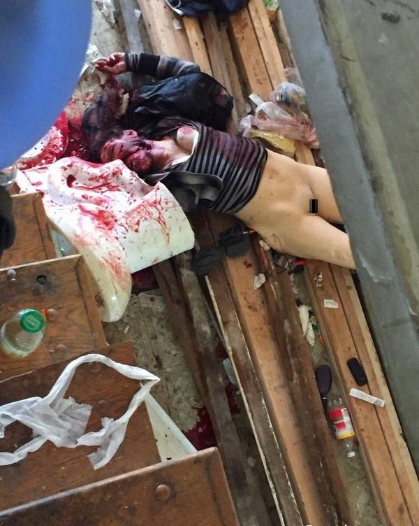 【超閲覧注意】レイプ被害にあった女性の遺体が酷すぎる。・21枚目
