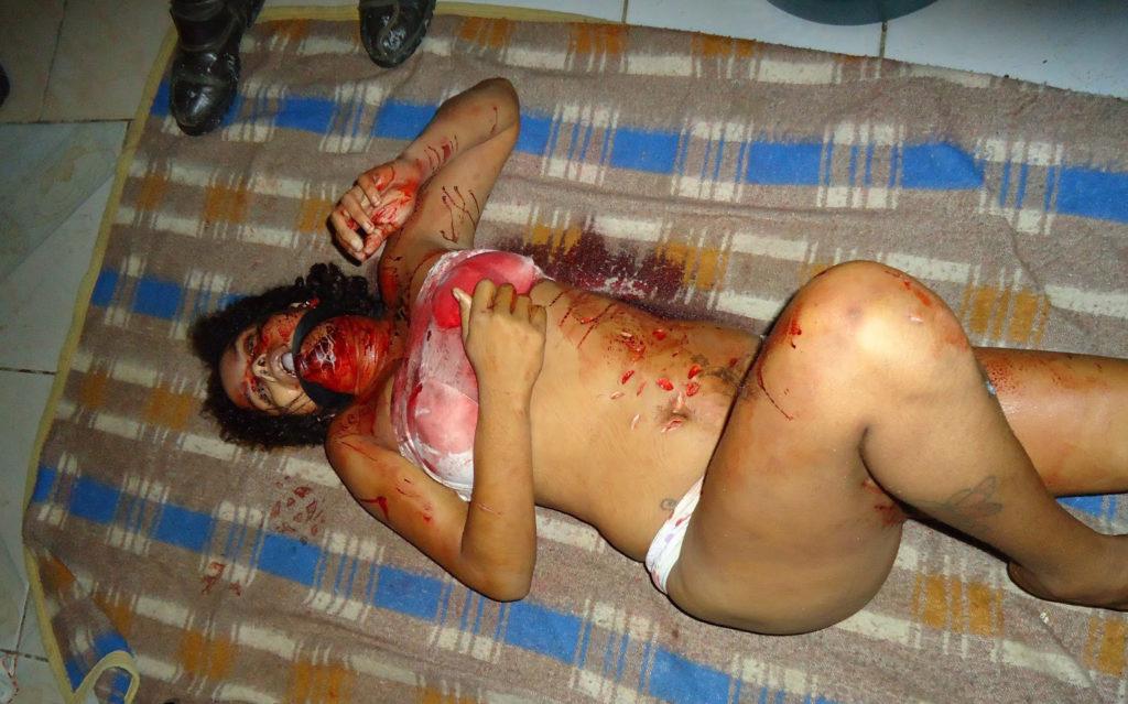 【超閲覧注意】レイプ被害にあった女性の遺体が酷すぎる。・27枚目