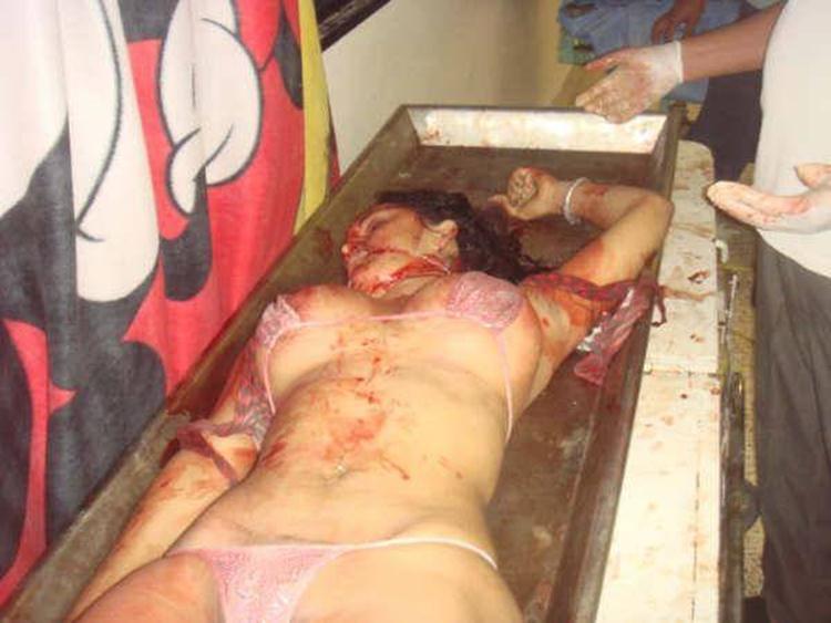 【超閲覧注意】レイプ被害にあった女性の遺体が酷すぎる。・7枚目
