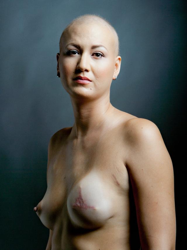 乳ガン患者のおっぱいをじっくり見てみる不謹慎すぎるエロ画像まとめ。(52枚)・1枚目