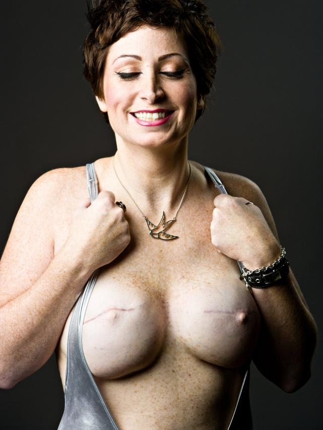 乳ガン患者のおっぱいをじっくり見てみる不謹慎すぎるエロ画像まとめ。(52枚)・2枚目