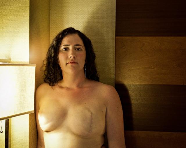 乳ガン患者のおっぱいをじっくり見てみる不謹慎すぎるエロ画像まとめ。(52枚)・4枚目