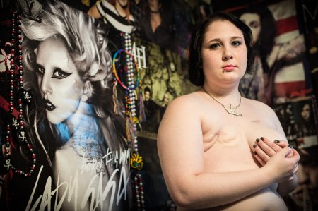 乳ガン患者のおっぱいをじっくり見てみる不謹慎すぎるエロ画像まとめ。(52枚)・5枚目