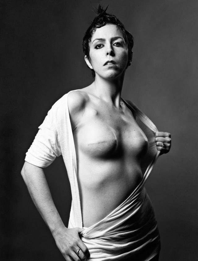 乳ガン患者のおっぱいをじっくり見てみる不謹慎すぎるエロ画像まとめ。(52枚)・8枚目