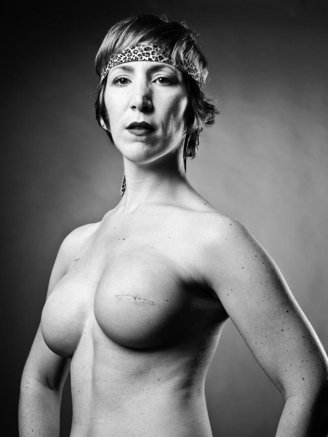 乳ガン患者のおっぱいをじっくり見てみる不謹慎すぎるエロ画像まとめ。(52枚)・9枚目