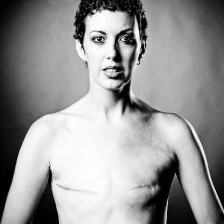 乳ガン患者のおっぱいをじっくり見てみる不謹慎すぎるエロ画像まとめ。(52枚)・17枚目