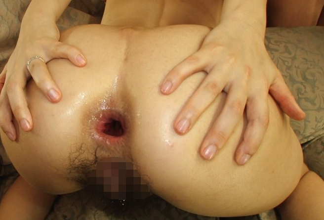 【アナル】お尻の穴が崩壊してしまったメス豚の肛門をご覧ください・・・・9枚目