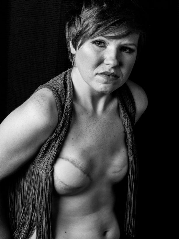 乳ガン患者のおっぱいをじっくり見てみる不謹慎すぎるエロ画像まとめ。(52枚)・3枚目