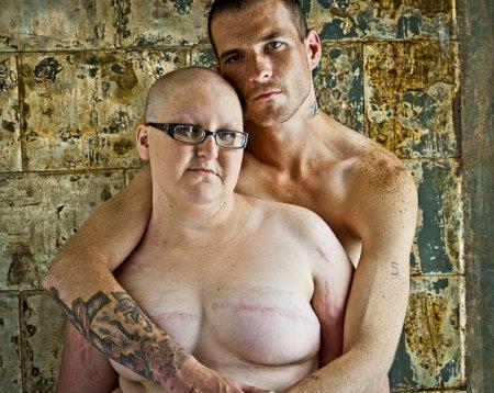 乳ガン患者のおっぱいをじっくり見てみる不謹慎すぎるエロ画像まとめ。(52枚)・6枚目