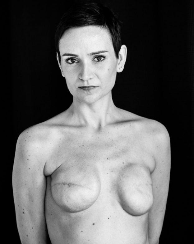 乳ガン患者のおっぱいをじっくり見てみる不謹慎すぎるエロ画像まとめ。(52枚)・15枚目