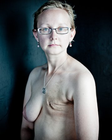 乳ガン患者のおっぱいをじっくり見てみる不謹慎すぎるエロ画像まとめ。(52枚)・26枚目